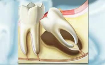 Mọc răng khôn bị đau phải làm sao