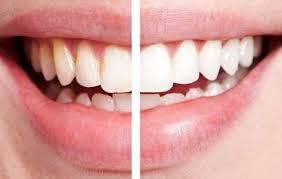 Những trường hợp nào không nên tẩy trắng răng ?