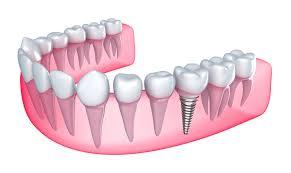 Phục hình răng bị mất