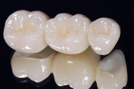 Đặc điểm của răng sứ titan 2