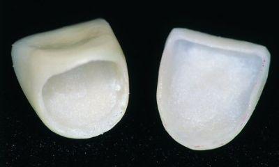 Răng sứ thẩm mỹ có cấu tạo toàn sứ