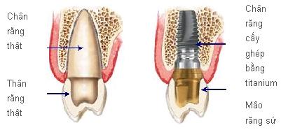 Những điểm nổi bật của phương pháp cấy ghép implant