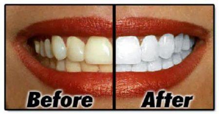 Tẩy trắng răng có tác hại không ?