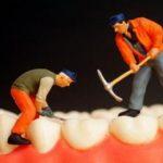 Trám răng có phải là giải pháp tối ưu cho răng sâu ?