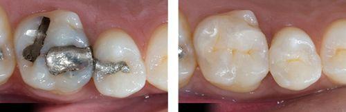 Sâu răng nguy hiểm như thế nào? 3