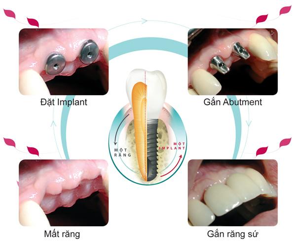 Kỹ thuật cắm ghép Implant 2