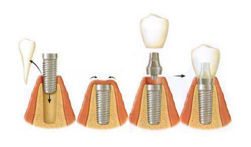 Cấy ghép Implant có khó không? 1