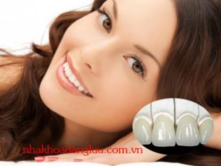 Bọc răng sứ Cercon có tốt không ?
