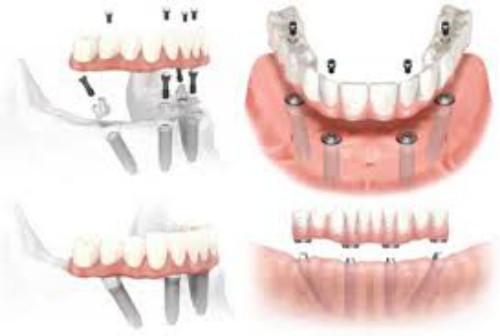 Cắm ghép Implant cho trường hợp mất nhiều răng 2