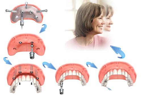 Cắm ghép Implant cho trường hợp mất nhiều răng  1