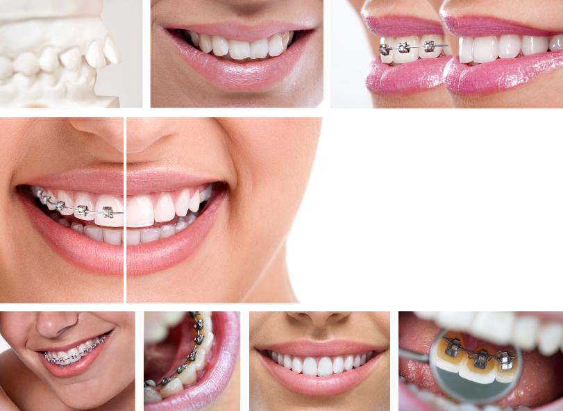 Niềng răng hô có nên không? 3