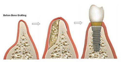 Giải đáp thắc mắc về cấy ghép Implant 1