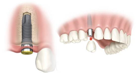 Trồng Implant nha khoa hiệu quả ở đâu? 3