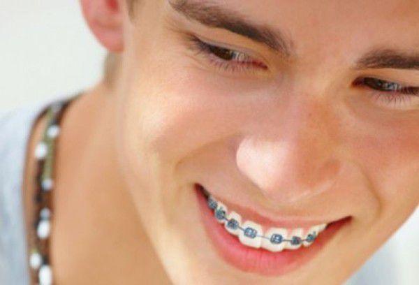 Có nên niềng răng hô không? 3