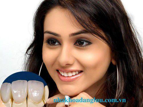Răng răng sứ Cercon có độ bền như thế nào? 3