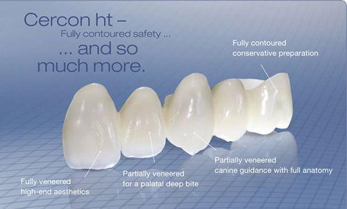 Bọc răng sứ Cercon có tốt không?1
