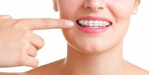 Niềng răng ở độ tuổi nào là thích hợp-1