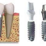 Có nên trồng răng với implant ?