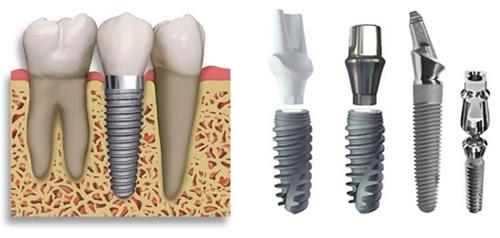 Địa chỉ cấy ghép Implant uy tín và chất lượng
