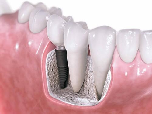 Lợi ích cấy ghép răng với implant đem lại là gì-2