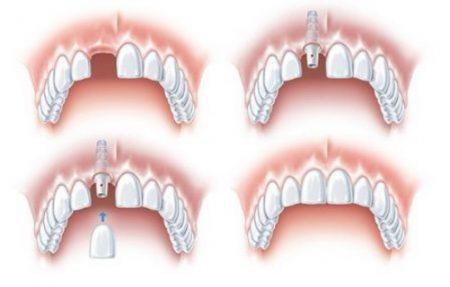 Cấy ghép răng Implant có ích lợi gì? 1