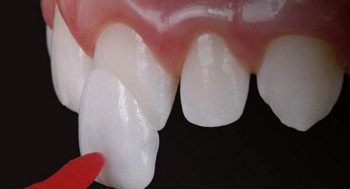 Dán răng sứ veneer hiện nay rất phổ biến 1