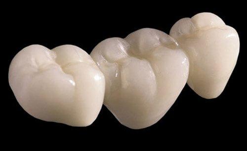 Răng răng sứ Cercon có độ bền như thế nào? 1