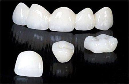 Tìm hiểu ngay bọc răng sứ có tác hại gì không 3