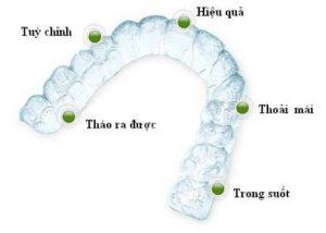 Mới niềng răng nên ăn gì để đảm bảo? 2