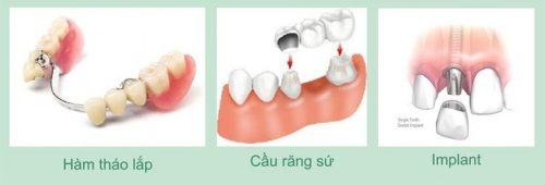 Răng hàm bị hư vậy trồng răng hàm giá bao nhiêu tiền? 1