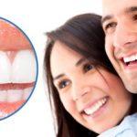 Bọc răng sứ veneer ở đâu tốt nhất hiện nay? 1