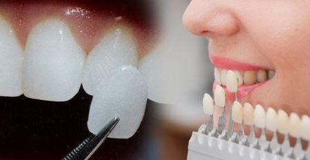 Bọc răng sứ veneer ở đâu tốt nhất hiện nay? 2