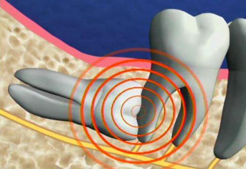 Nhổ răng khôn có ý nghĩa gì không? 1