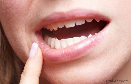 Răng khôn mọc lệch có nên nhổ không? 2