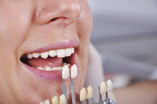 Có nên bọc răng sứ thẩm mỹ không? 2