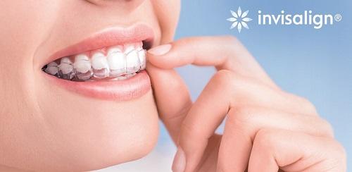 Tư vấn về vấn đề niềng răng có nguy hiểm không cho bạn? 2