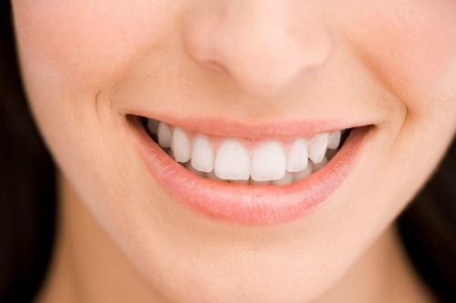 Tư vấn về vấn đề niềng răng có nguy hiểm không cho bạn? 4
