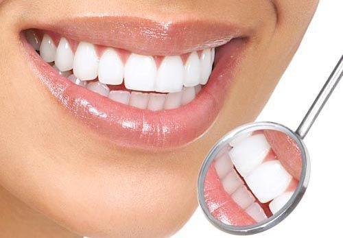 Xu hướng tẩy trắng răng brite smile 2018 hiệu quả cao 1