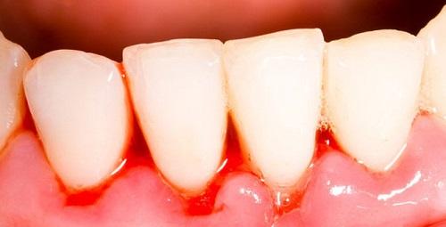Chảy máu chân răng khi đánh răng có ảnh hưởng gì không? 1
