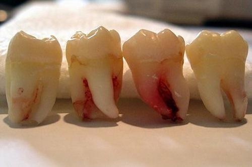 Nhổ răng hàm không đau có đúng không? Tìm hiểu ngay 2
