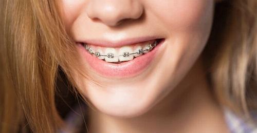 Theo bạn niềng răng có hết móm không? 2