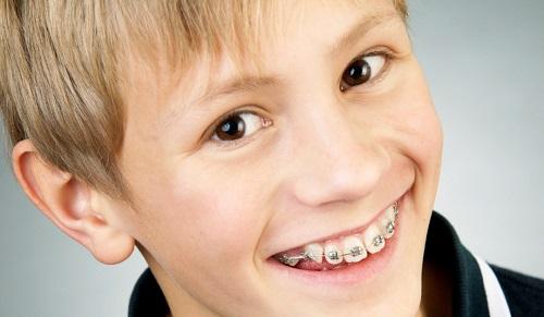 Niềng răng làm răng lung lay có sao không? 3