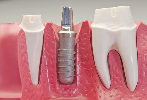 Trồng răng cấm hết bao nhiêu tiền hiện nay? 3