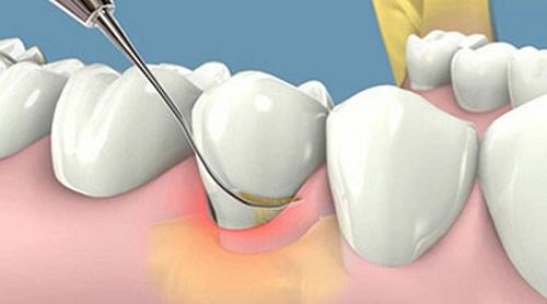 Lấy cao răng có đau hay không? Lưu ý gì khi lấy cao răng? 2